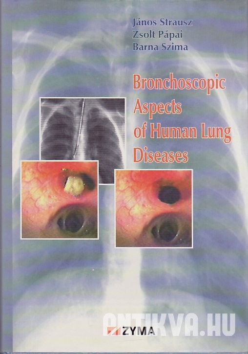 Bronchoscopic Aspects of Human Lung Diseases