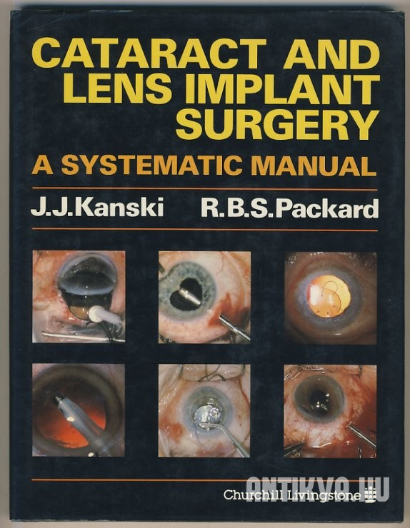 Cataract and Lens Implant Surgery